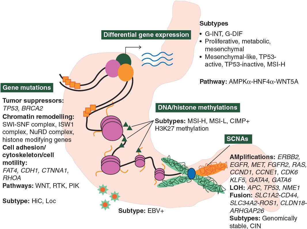 gastric cancer molecular classification oxiori