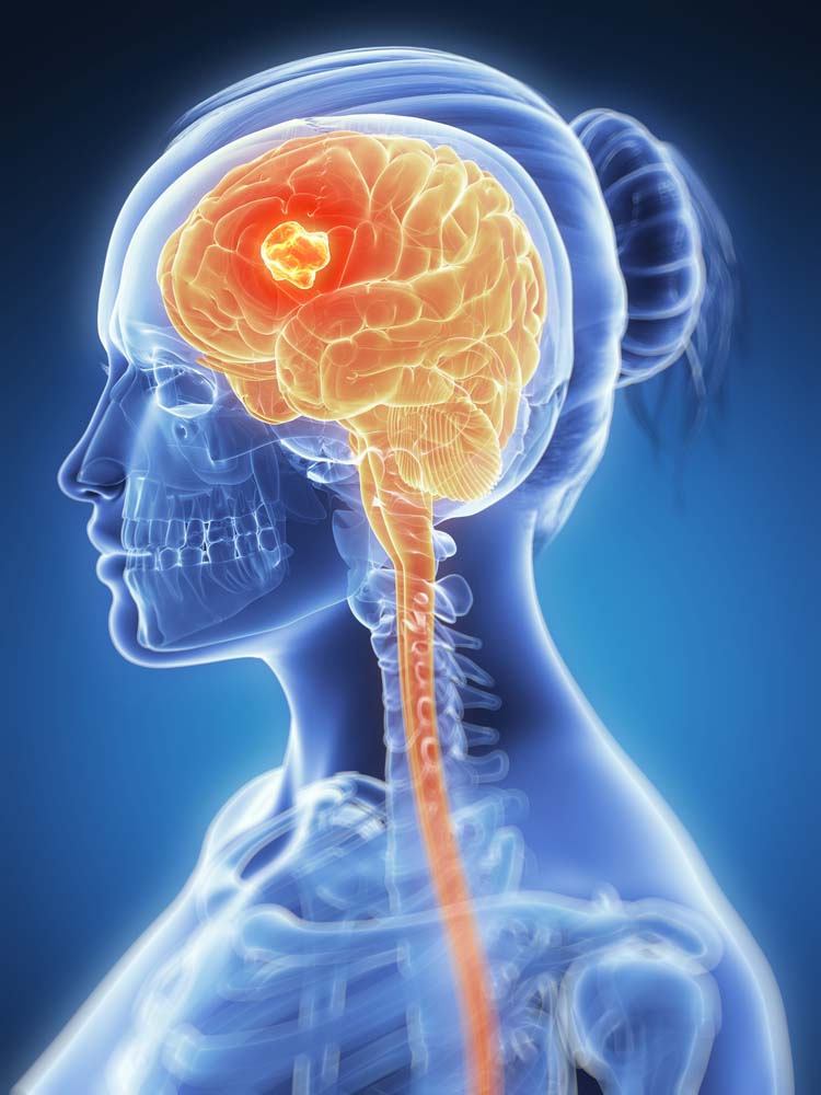 genetic cancer brain