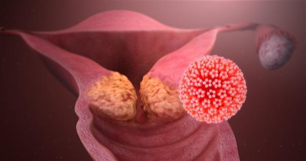papilloma virus e tumore al seno
