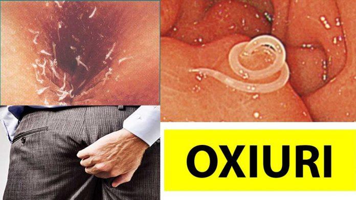 helminti simptome la copii condyloma acuminatum medscape