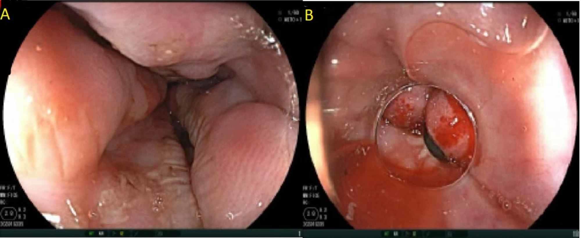 human papillomavirus (hpv) and genital warts anthelmintic activity of allium sativum