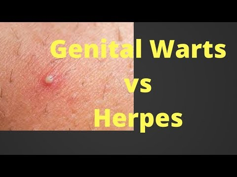 herpes genital papilloma
