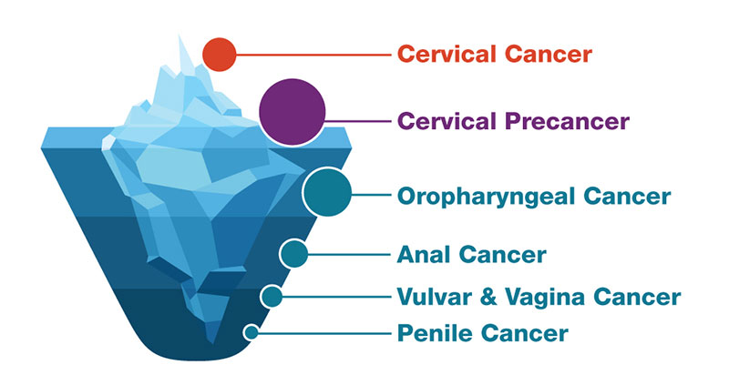 how does hpv causes cancer