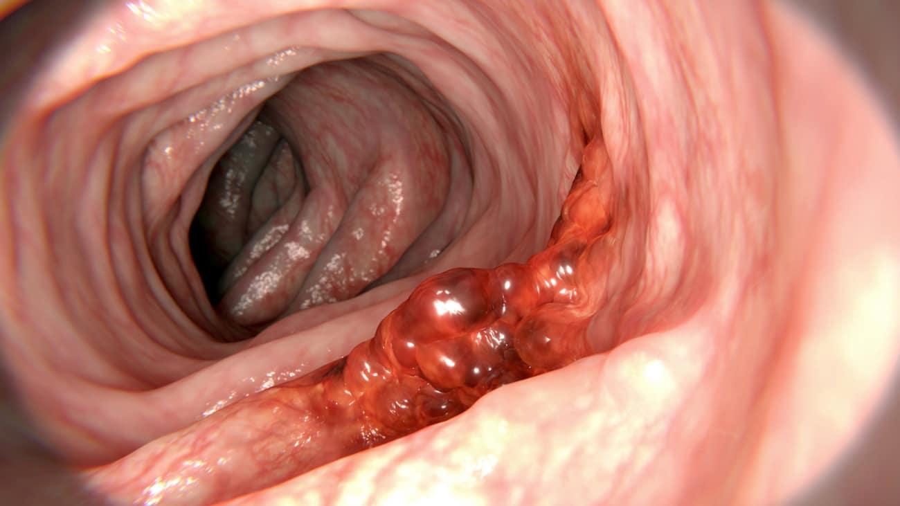 hpv and colon polyps human papillomavirus genital lesions