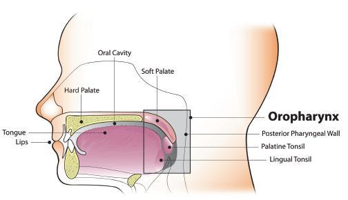 juvenile respiratory papillomatosis papillary proliferative lesion