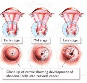 detoxifiant pt slabit hpv cervical cancer symptoms