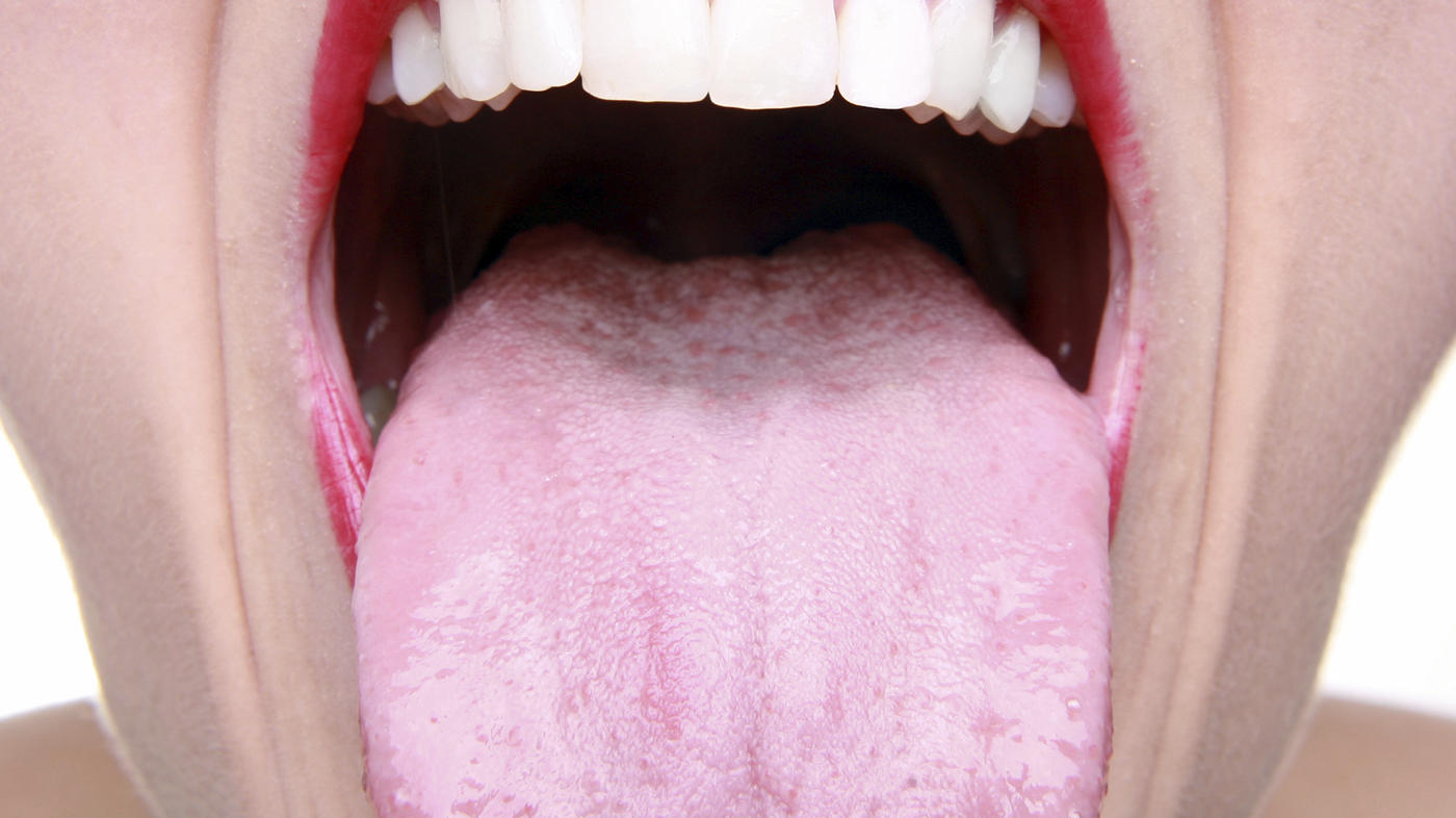 hpv cause tongue cancer