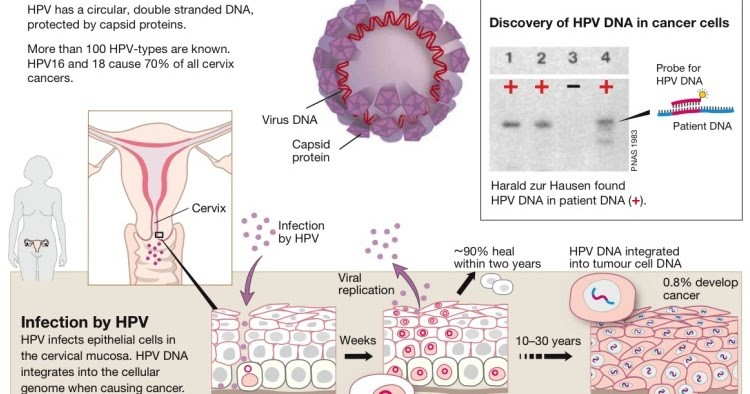 hpv causes cervical cancer
