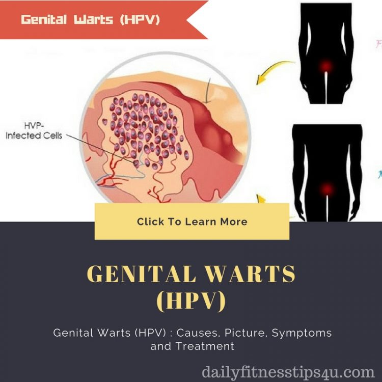 hpv causes symptoms and treatments hpv treatment high risk