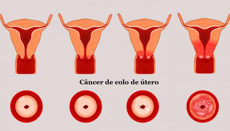 hpv e cancer de colo respiratia urat mirositoare tratament