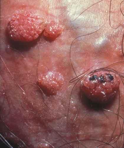hpv et mycose bladder papilloma pathology