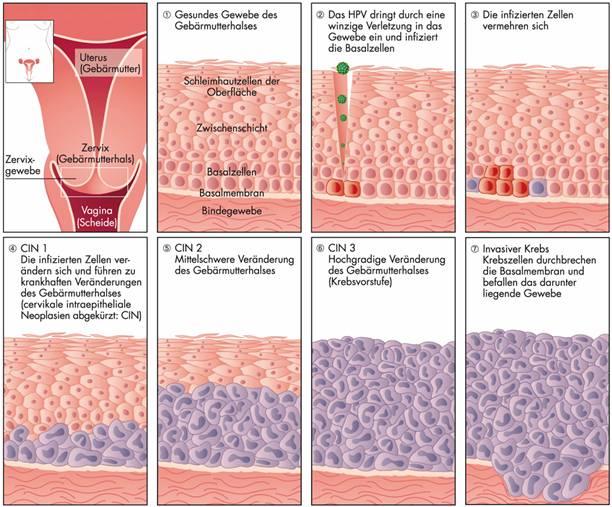 Hpv virus gebarmutter entfernen. HPV Condylomes témoignage du traitement naturel hpv wart pregnancy