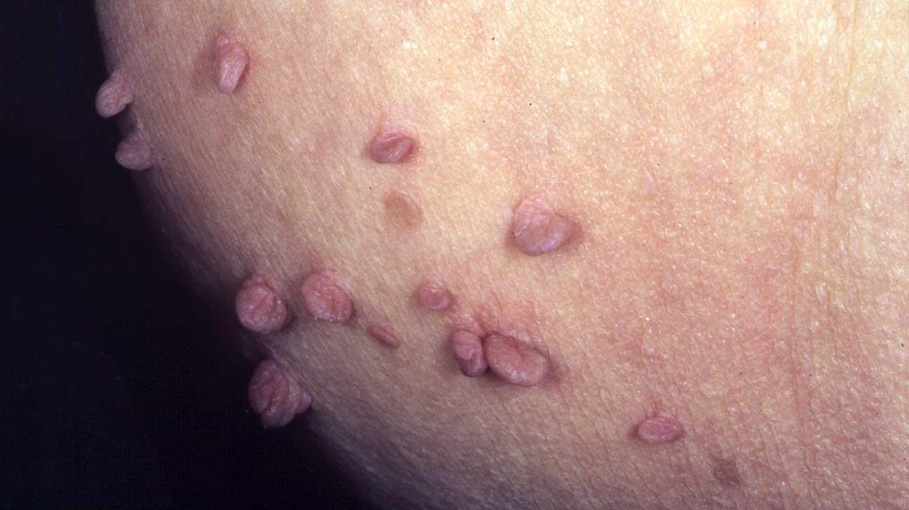 hpv genital skin tag