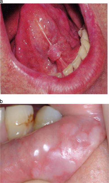 hpv lesion tongue