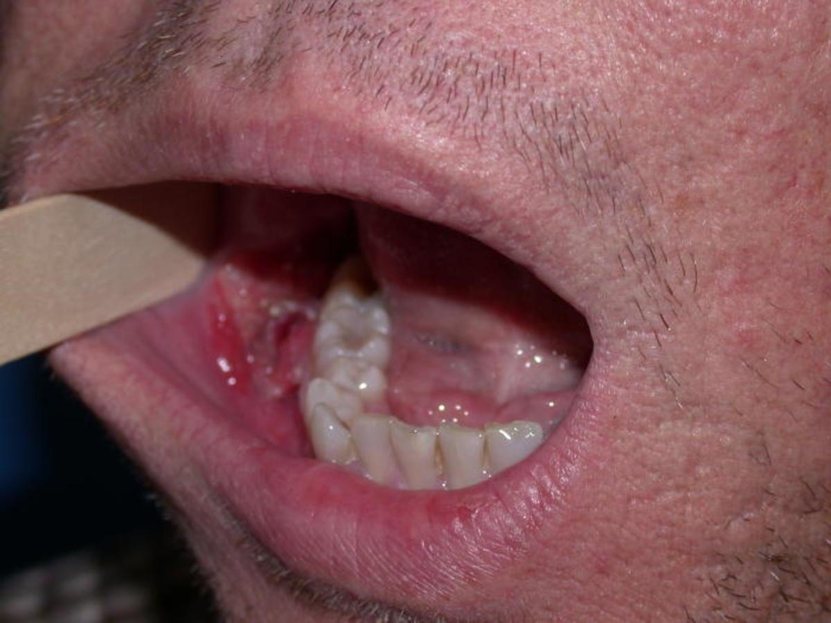 hpv mouth image squamous papilloma tongue images