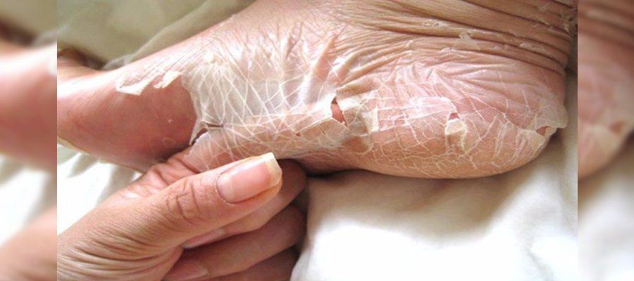 hpv skin disorder un vierme mic audio