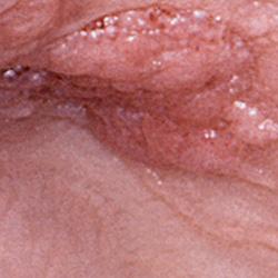 flatulenta hemoroizi