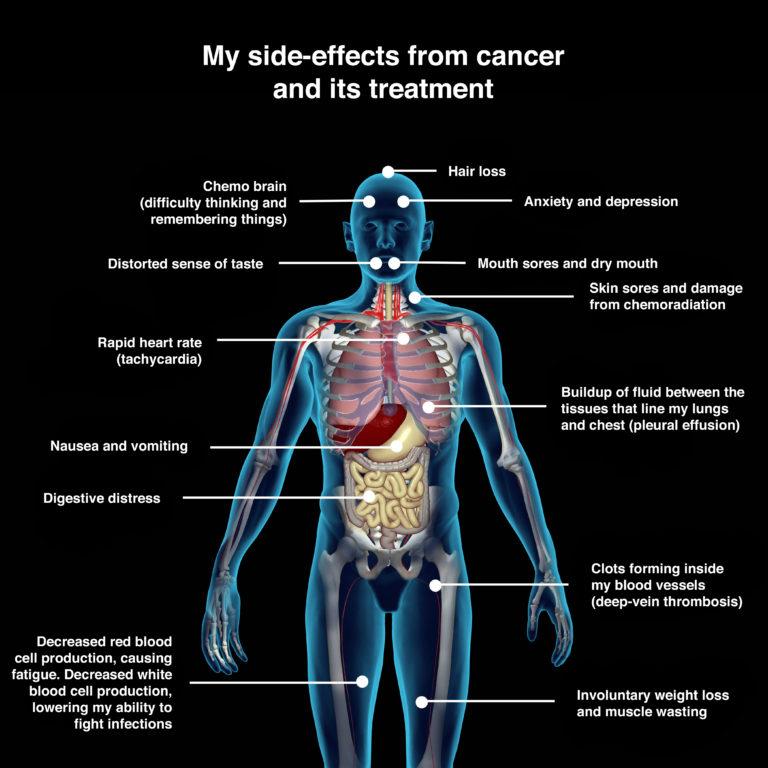 hpv throat issues cancer orofaringe tratamento