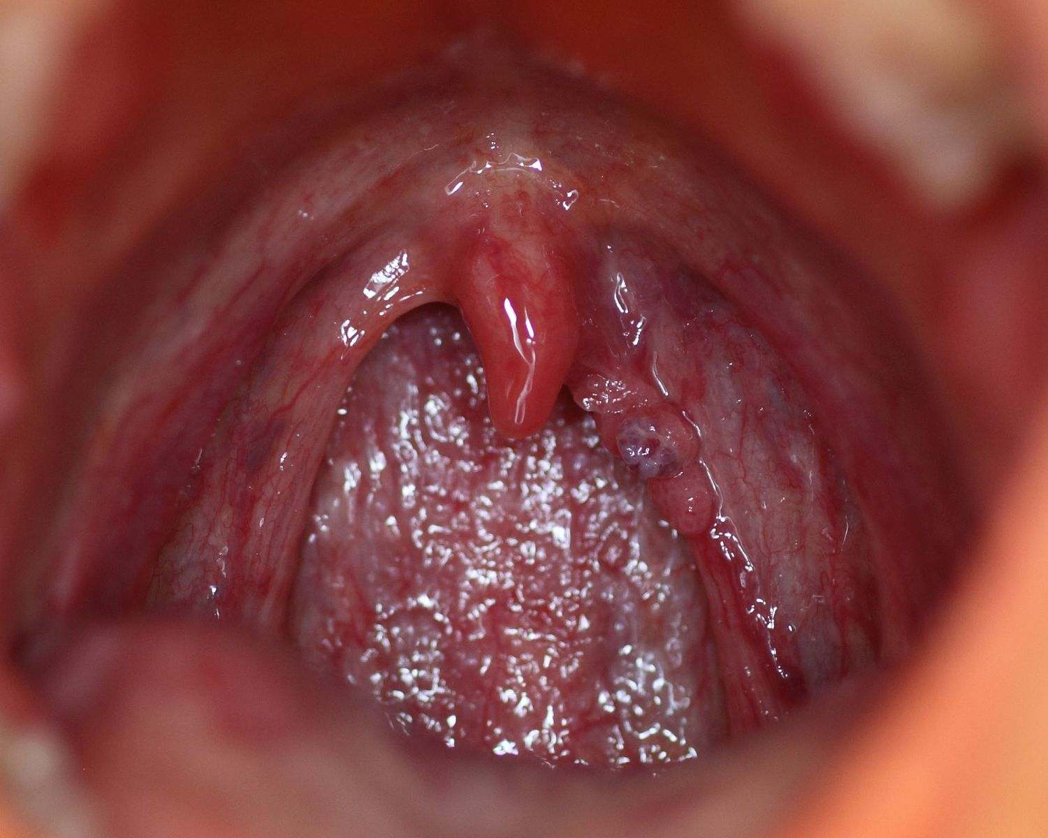 hpv virus cause bleeding intraductal papilloma with florid ductal hyperplasia