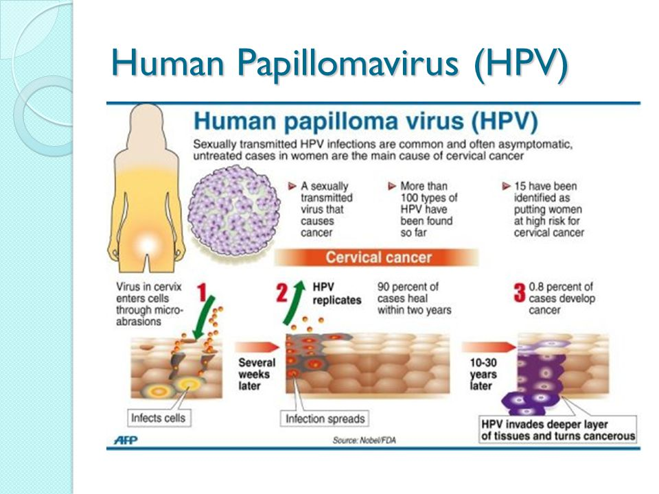 hpv virus cause cancer cancer bucal se cura