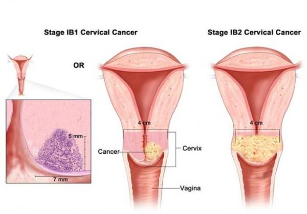 hpv virus la femei laryngeal papillomatosis pathogenesis