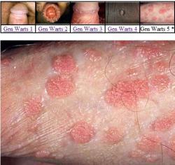 test del papiloma humano papiloma zona perianal