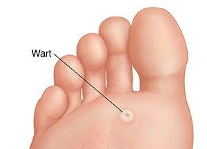 hpv virus warts on foot