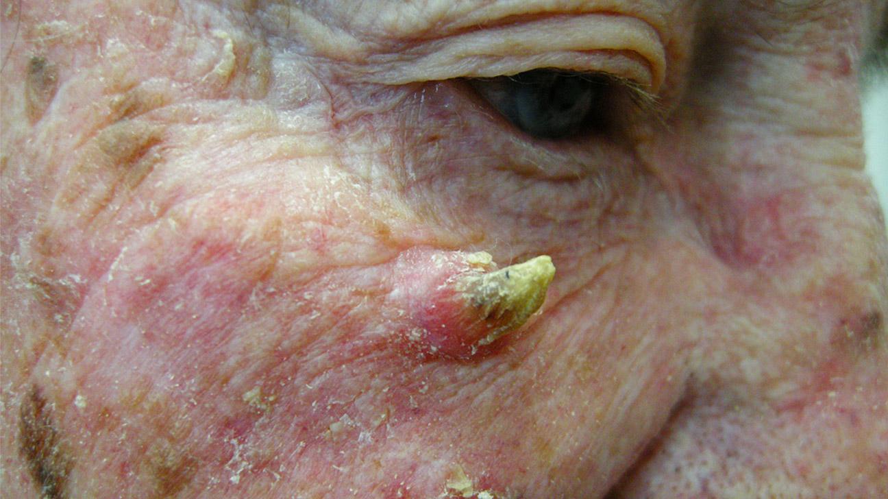 3 caracteristicas del virus del papiloma humano