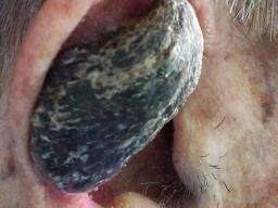 hpv wart horns papiloma humano ano sintomas
