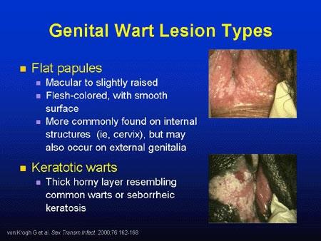 hpv warts vs cancer virus papiloma humano genotipo 51