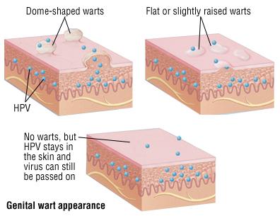 hpv warts will go away cancer orofaringe artigo
