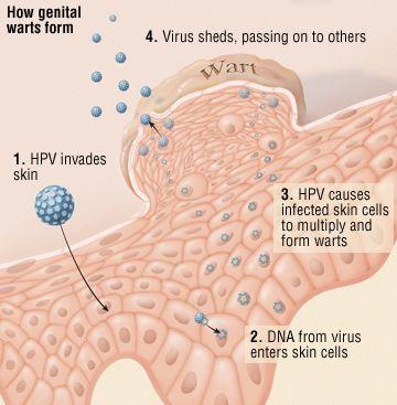 human papilloma causes