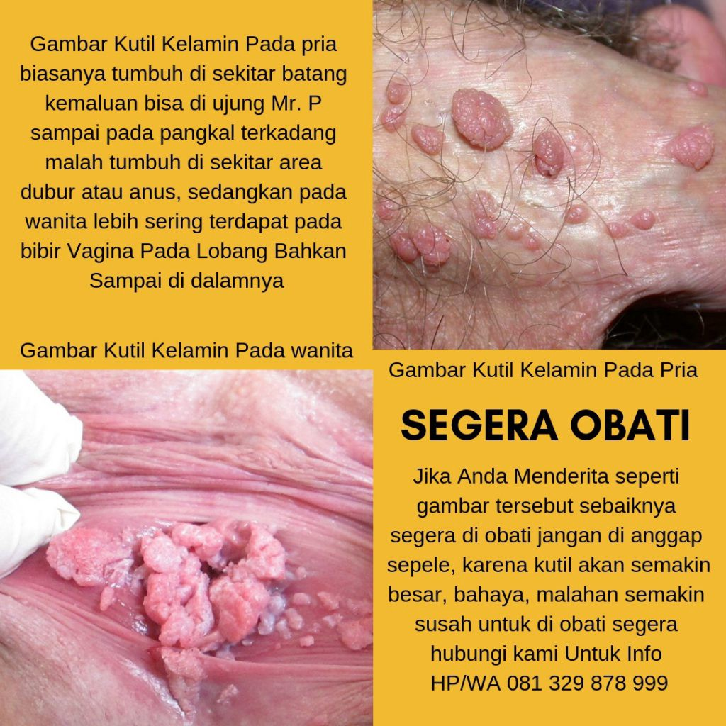 hpv nutrition therapy