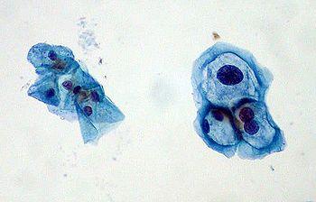 human papillomavirus cytopathic effect