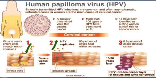human papillomavirus infection untreated