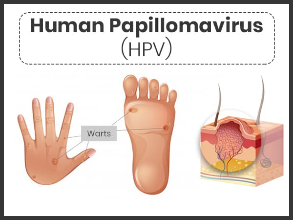 wart on foot cure papilloma not caused by hpv