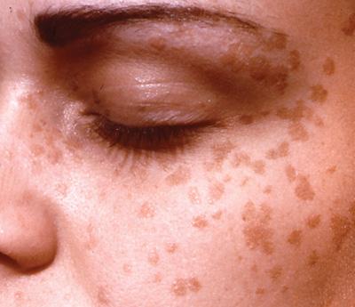 human papillomavirus skin lesions hpv throat cancer celebrity