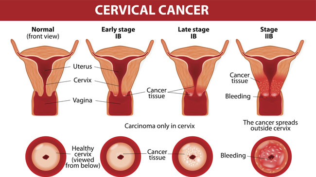 cancer colon maligne gastric cancer classification