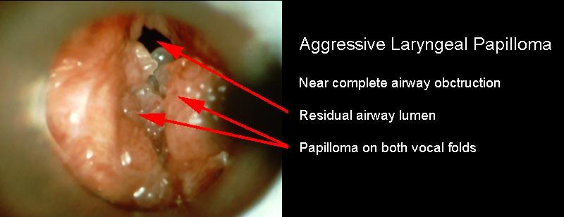 injection for recurrent laryngeal papillomatosis verruga genital papiloma humano