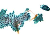 intraductal papilloma fibrocystic changes que cancer esta en el auge