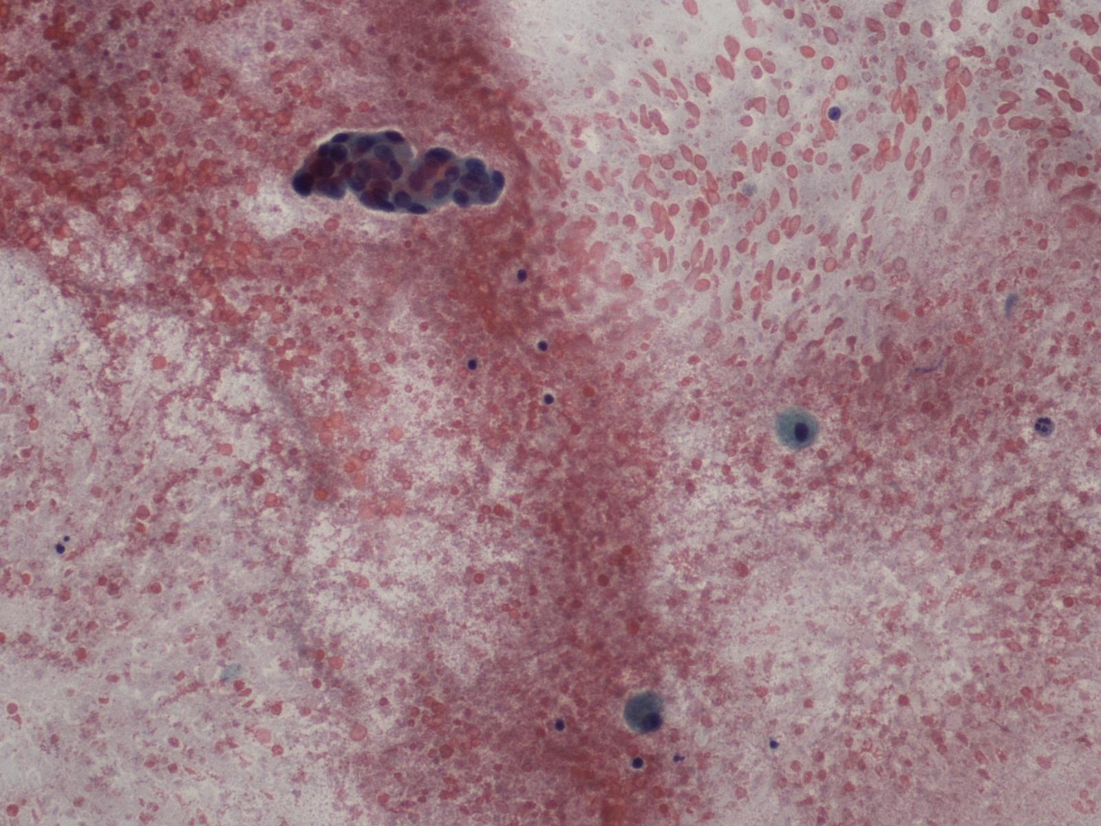 hpv impfung typen el virus de papiloma humano que es
