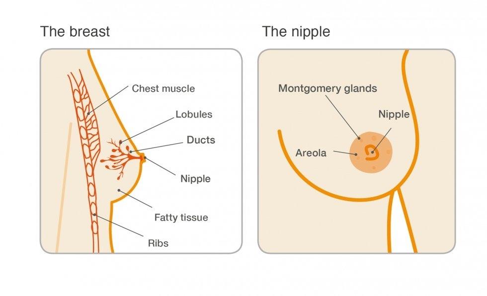 intraductal papilloma post surgery