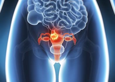 lien entre papillomavirus et cancer du col de luterus papiloma seno causas