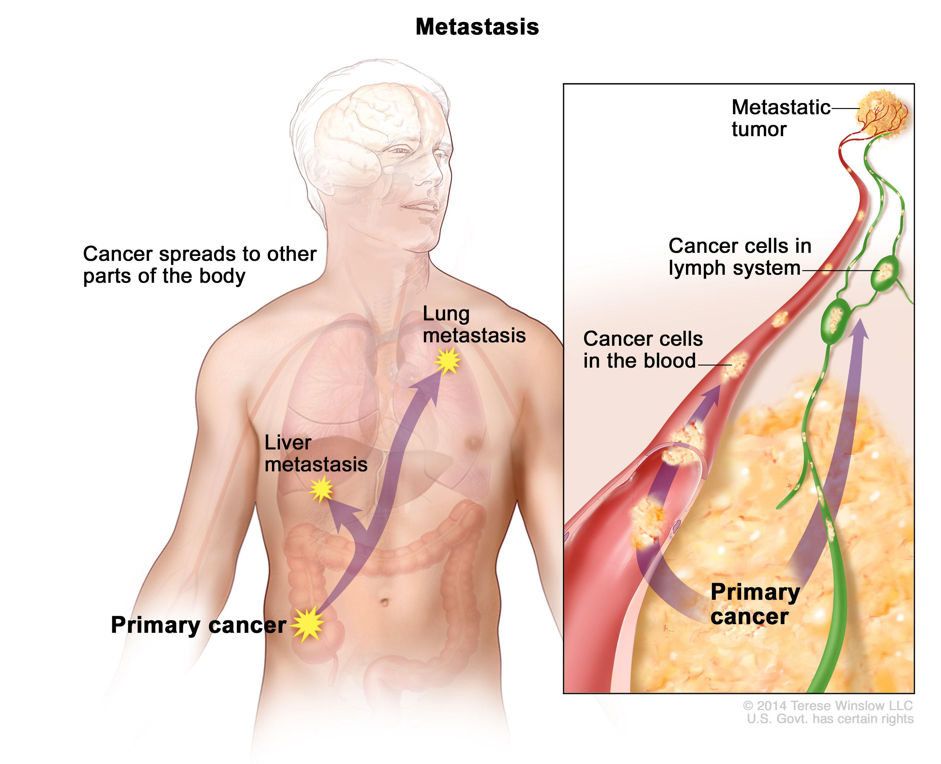 metastatic cancer causes