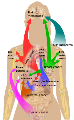 metastatic cancer meaning in kannada hpv and cervical cancer nhs