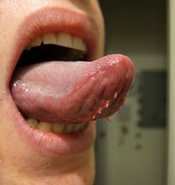 mouth wart reddit papilloma virus cancro seno