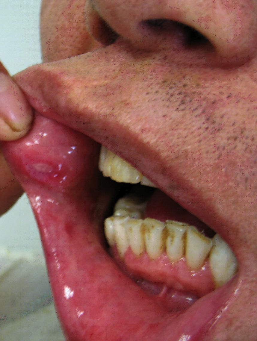 mouth warts nhs