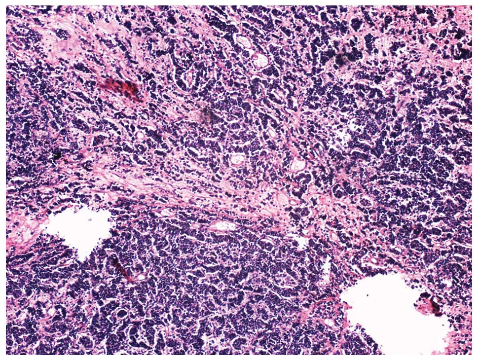 neuroendocrine cancer cervical