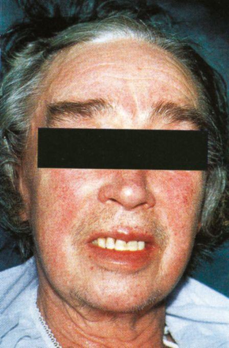 neuroendocrine cancer facial flushing detoxifiere blogul cu legume