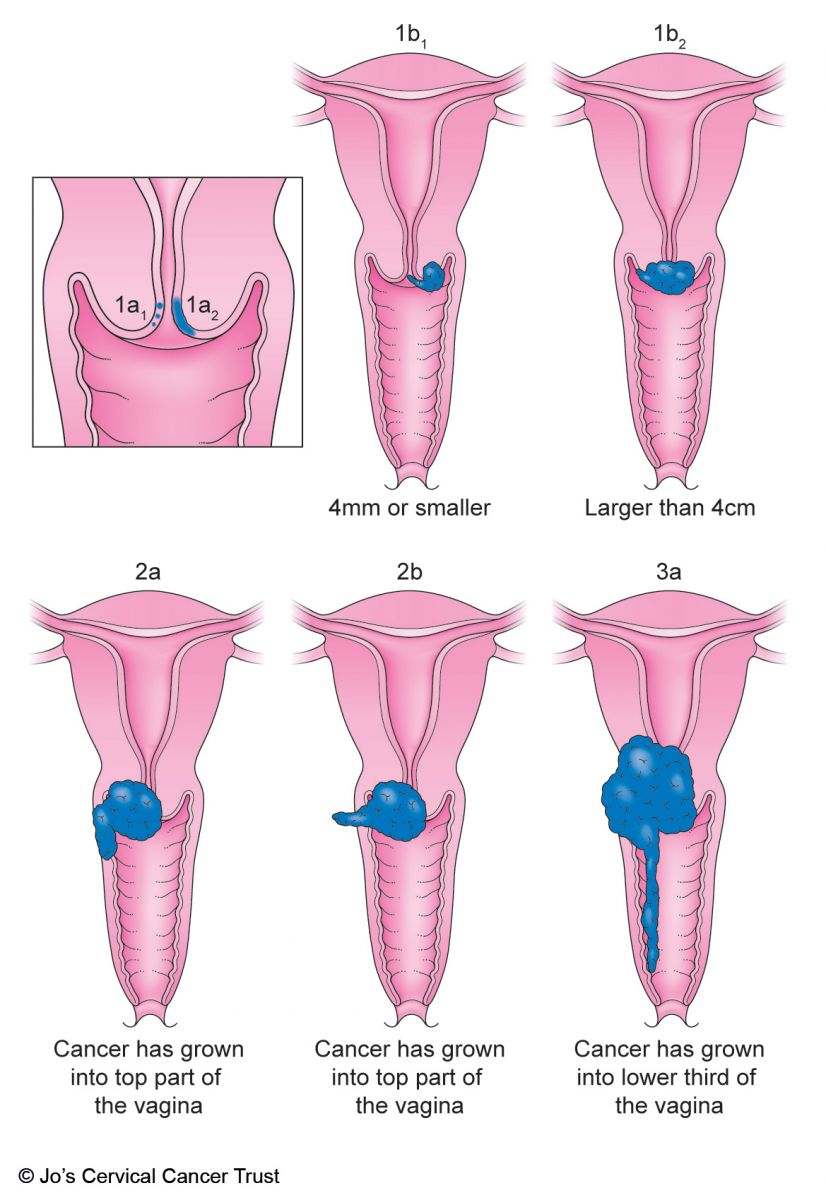 neuroendocrine cancer in the cervix